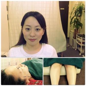 東京のオススメ美容鍼です