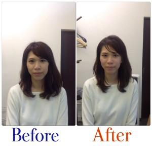 美容鍼は東京からです