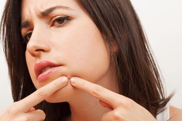 Benzagel-QandA-Popping-Pimples