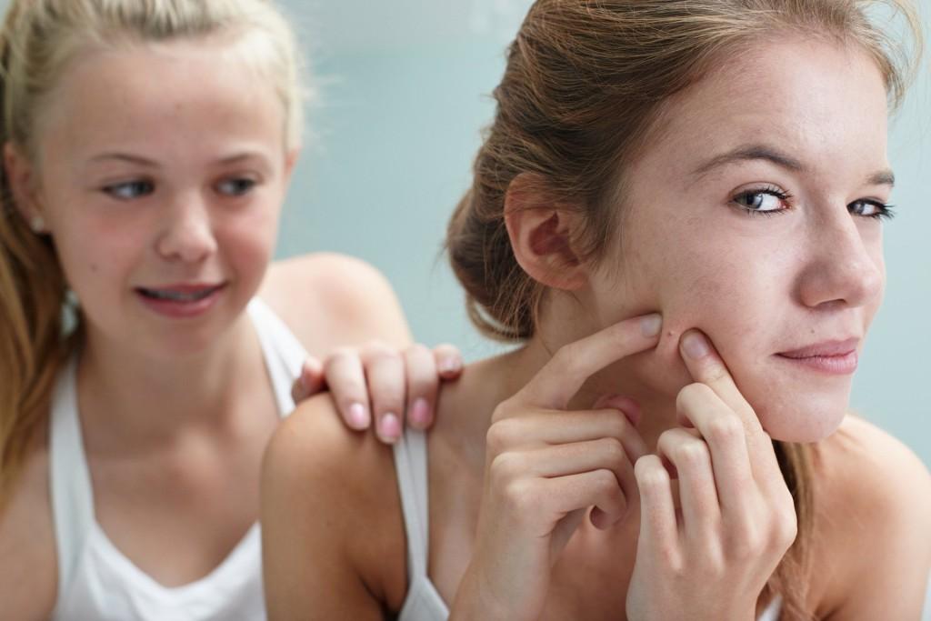 acne-150313