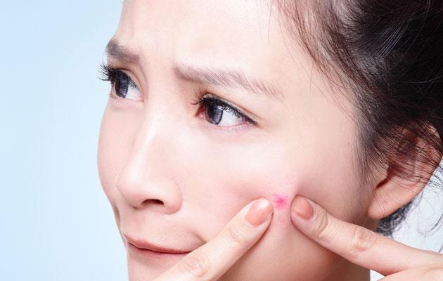 acne-8