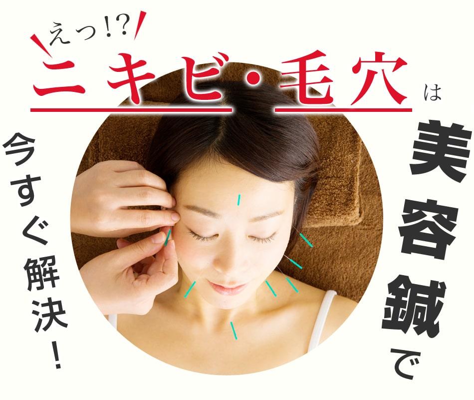ニキビ・毛穴は美容鍼で今すぐ解決!